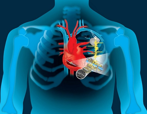 Global Structural Heart Devices Market Latest Updates with Market Shares, Revenue, and Competitors Top most Industry expected to show steady growth by 2023 9