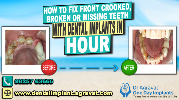 Dr Bharat Agravat introduces a unique way to fix anterior front crooked, Broken or Missing Teeth with dental implants in an hour 1