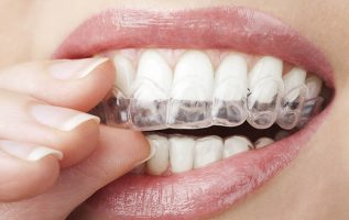 Clear Aligners Market 2019 Global Market Analysis By Product Type -Hard, Medium, Soft, Age-Adult, Teenager, By Distribution Channel and by Region, Forecast till 2023 5