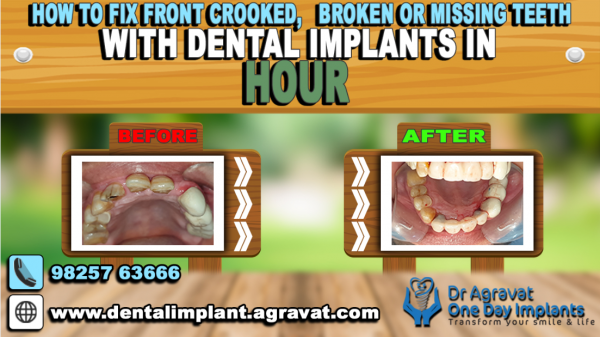 Dr Bharat Agravat introduces a unique way to fix anterior front crooked, Broken or Missing Teeth with dental implants in an hour 2