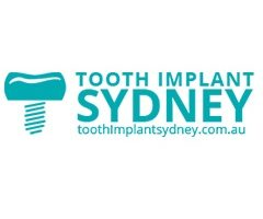 Tooth Implant Sydney Provide Quality Dental Implants with Latest Equipment in Dentistry 4