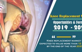 Knee replacement market is expected to value more than 12 Billion by the end of the year 2025 3