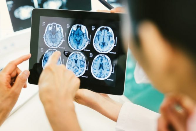 Nehora Law Firm Obtain Maximum Compensation For their Clients Who Suffered Brain Injuries 1
