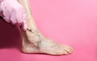 New Laser Treatment Cures Varicose Veins and Piles in One Day 3