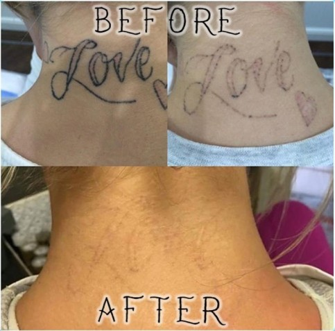 Introducing the Eraser Laser™ v2, an at-home tattoo removal Laser from DWS Holdings 2