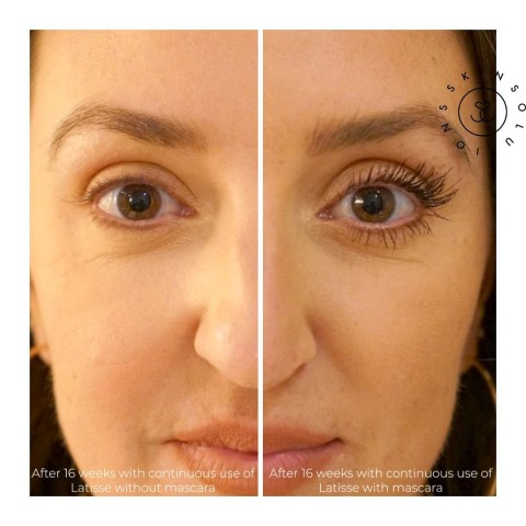 SkinSolutions.MD Helps Enhance Eyelash Growth with Clinically Proven Latisse Serum Treatment 13