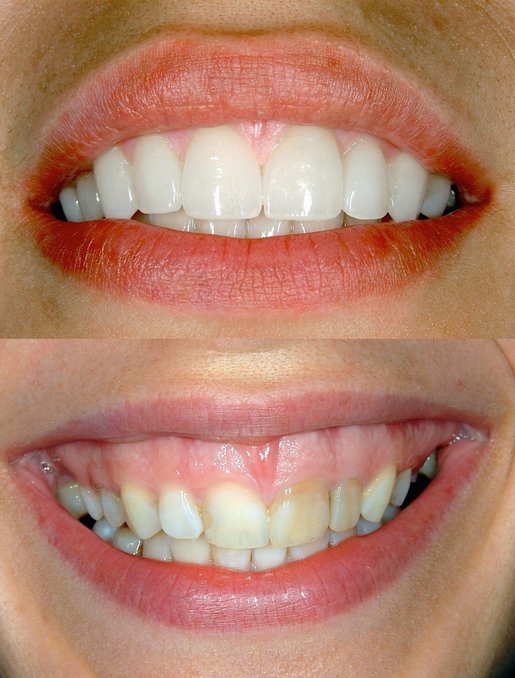 Porcelain Veneers Can Make a Huge Difference in Health and Happiness 1